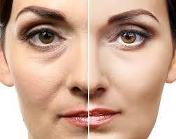 Idealist - für die Gesichtshaut - Nebenwirkungen - erfahrungen - comments