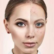 Novaskin – bei Hautproblemen - Deutschland – preis – test