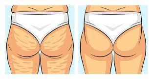 Perfect Body Cellulite - in apotheke - bei dm - in deutschland - in Hersteller-Website - kaufen